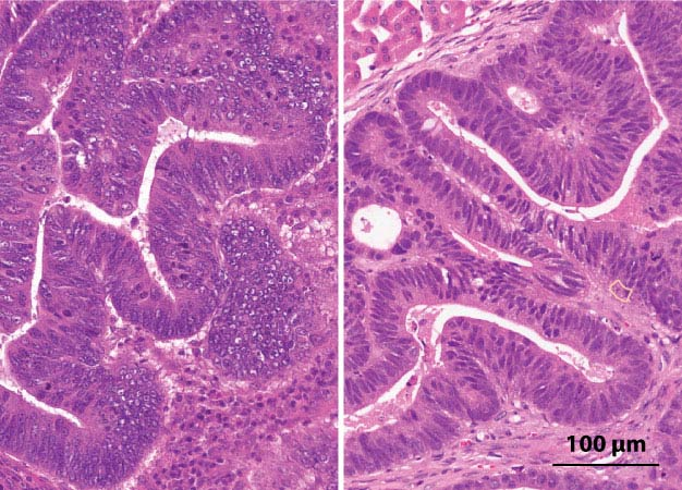 Three-dimensional tumors grown on a dish and transplanted into animal models (right) develop similar cellular structures as the original colorectal cancer cells taken from patient tumors (left).
