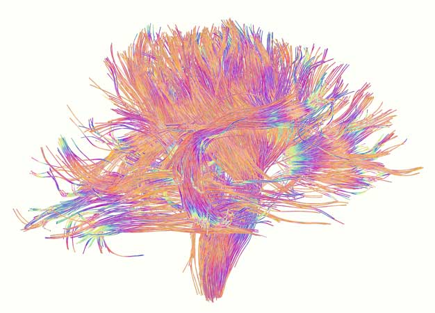 Improved models of the brain's communication network, known as white matter, could explain how diseases develop early in life.