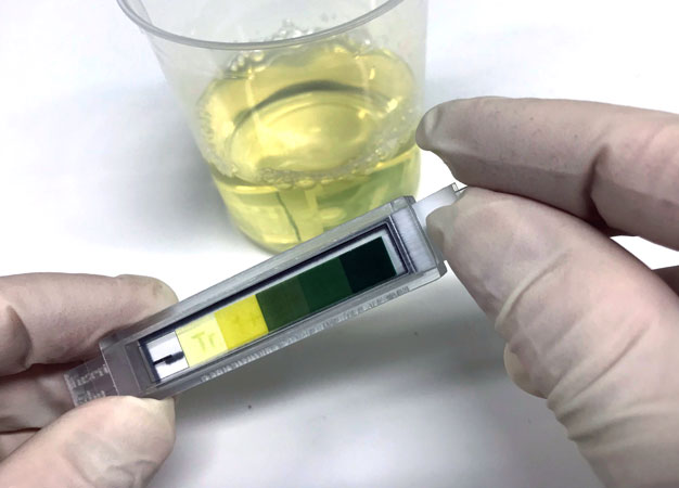 Reading the results of home urine tests can be challenging. Daniel Citterio and his team have developed a system that makes it much easier to interpret results.